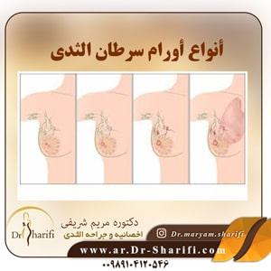 أنواع أورام سرطان الثدي